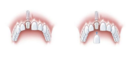 mkkmed-implanty-1