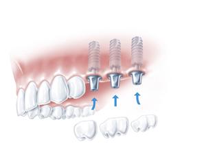 mkkmed-implanty-2
