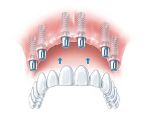 mkkmed-implanty-3