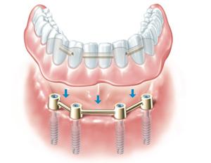 mkkmed-implanty-4